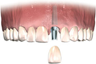 Implant Placed